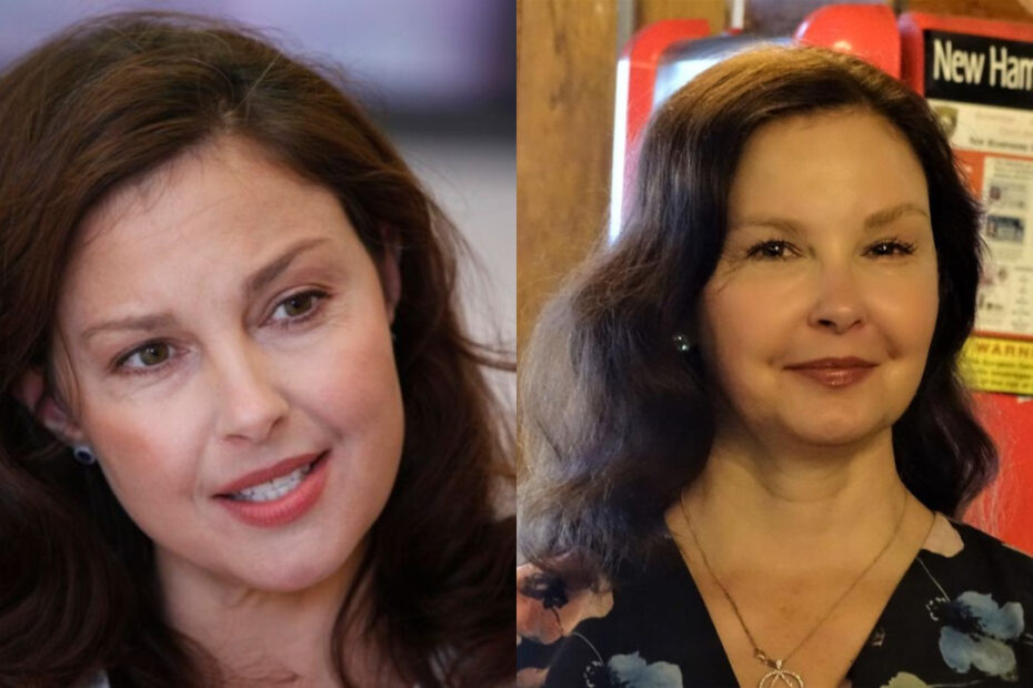 Ashley Judd's plastic surgery includes Botox injections.