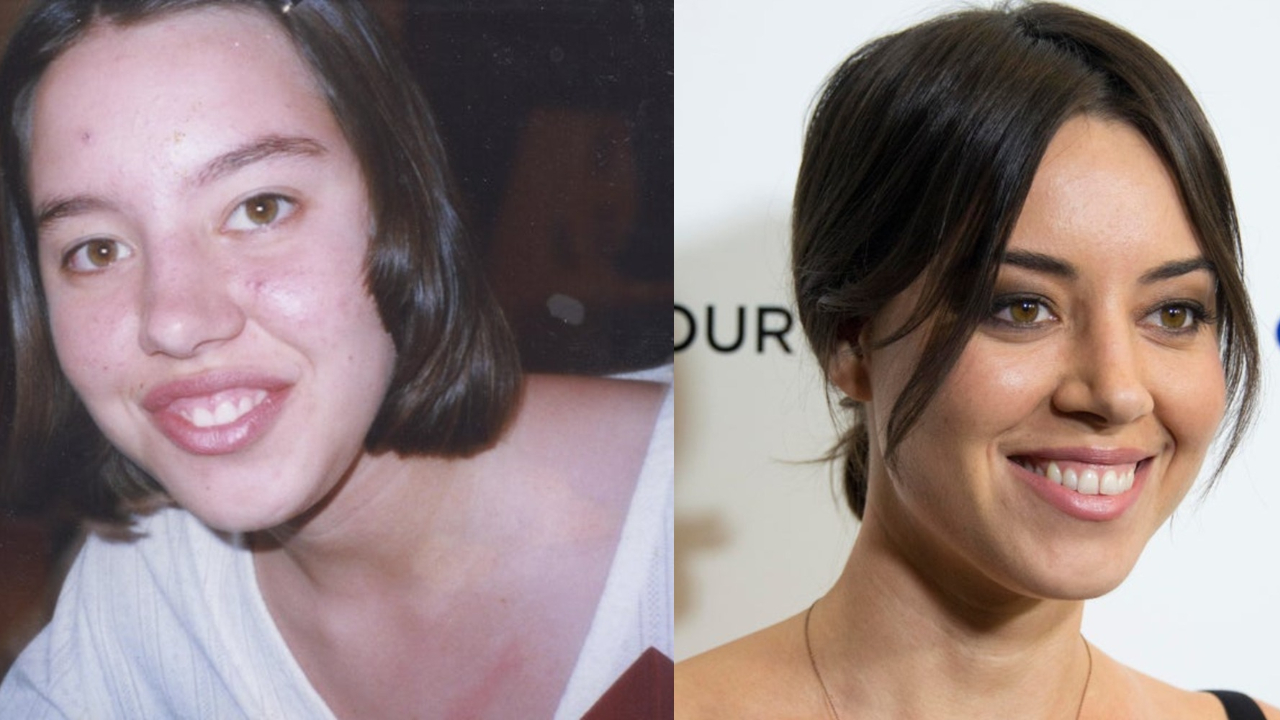 Aubrey Plaza before and after plastic surgery.