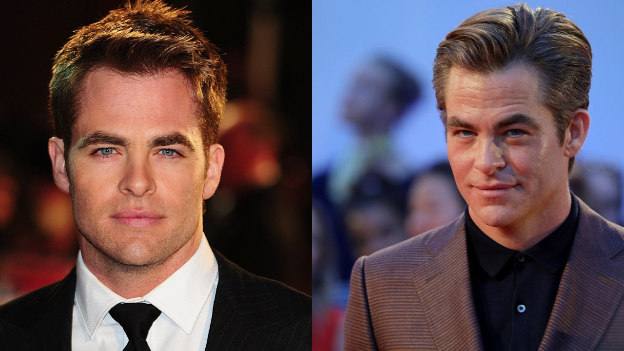 Chris Pine before and after alleged plastic surgery on lips and face, most notably Botox.