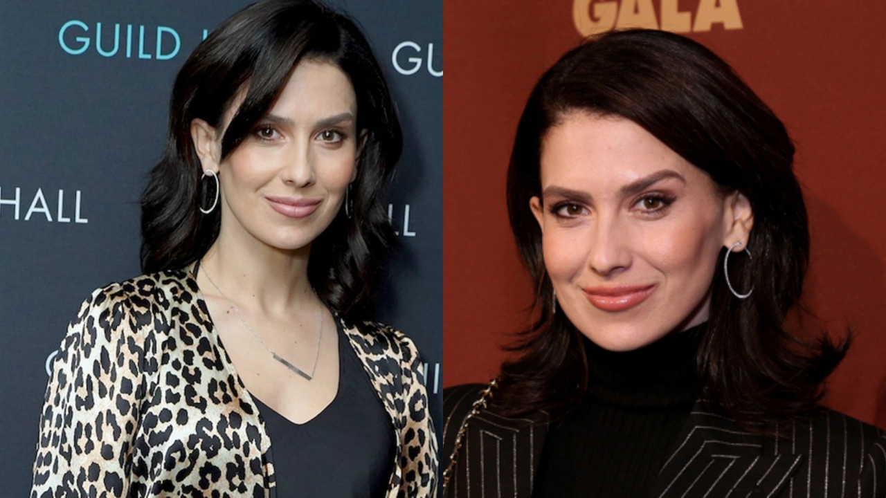 Hilaria Baldwin before and after alleged plastic surgery.