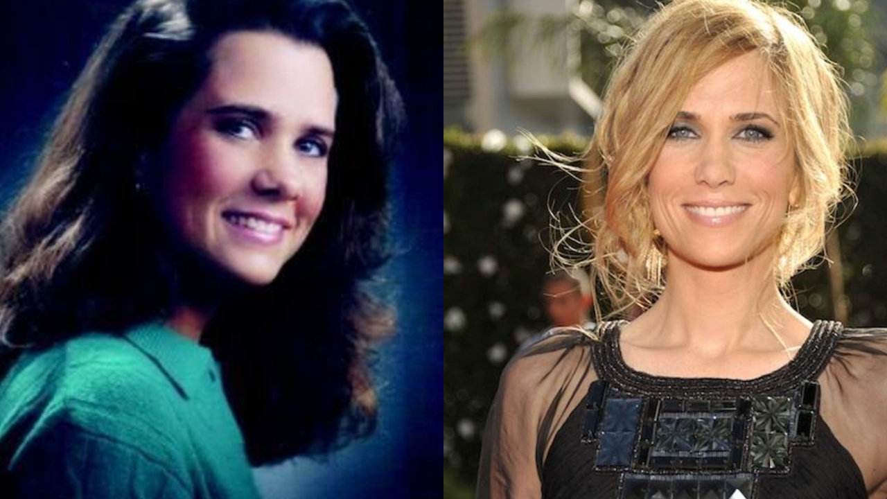 SNL alum Kristen Wiig before and after suspected plastic surgery.