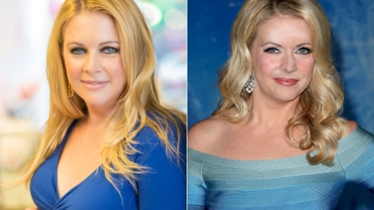 Melissa Joan Hart before and after alleged plastic surgery.