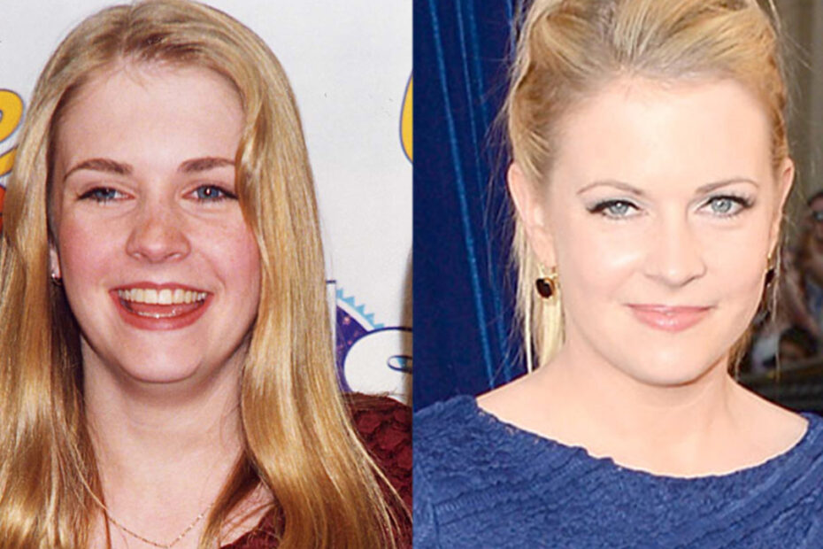 Melissa Joan Hart before and after plastic surgery.
