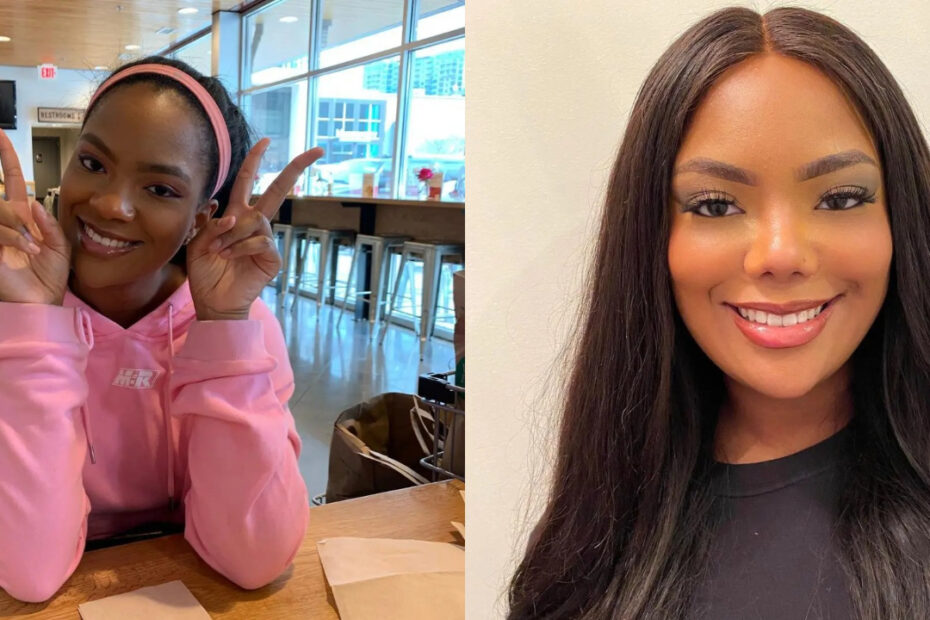 Riley Burruss before and after nose job plastic surgery.