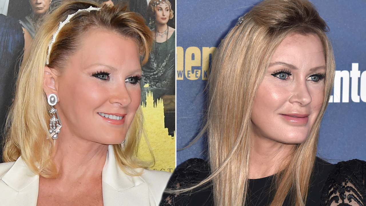 Sandra Lee's plastic surgery includes Botox injections.