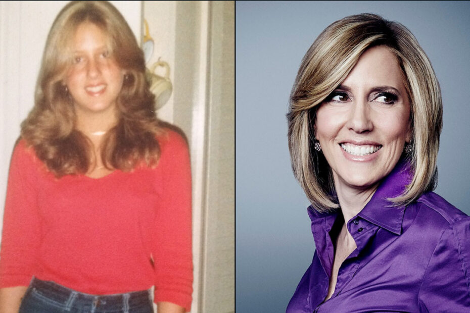 Alisyn Camerota before and after plastic surgery.