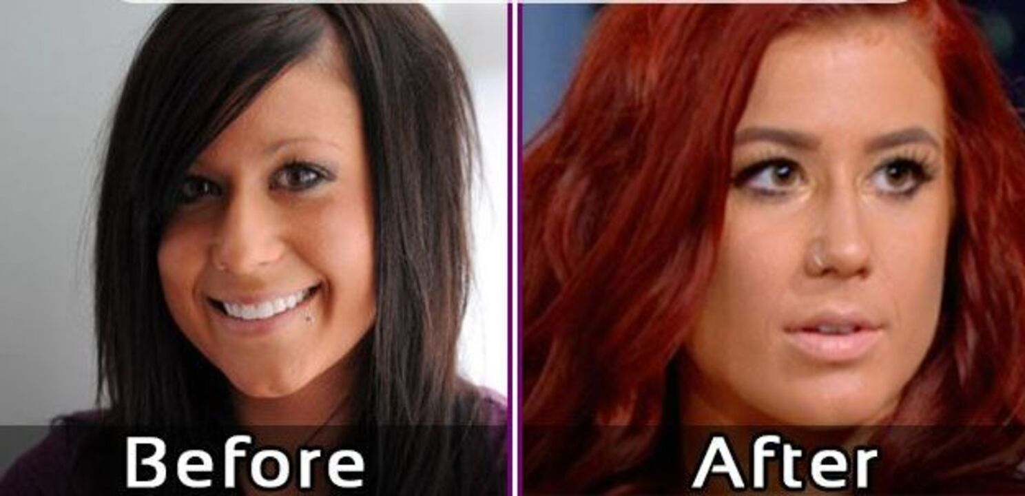 Chelsea Houska before and after plastic surgery.