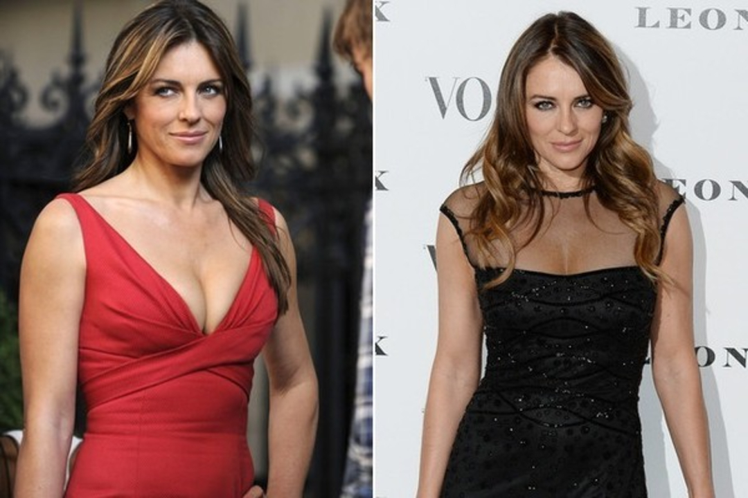 Elizabeth Hurley is the subject of Botox injections plastic surgery.