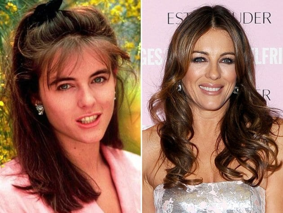 Elizabeth Hurley's plastic surgery includes lip augmentation and breast implants.