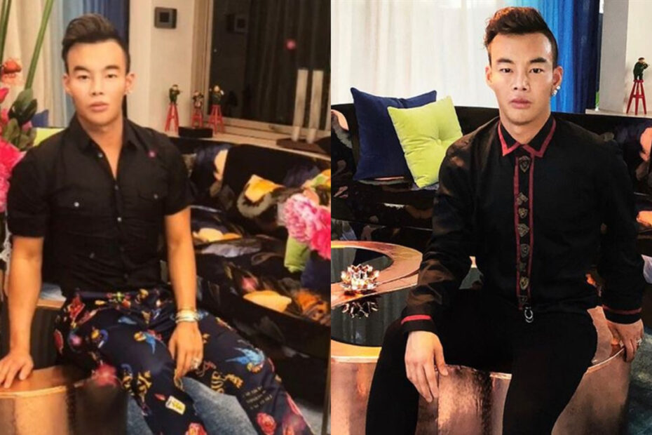 'Bling Empire' Kane Lim Before Plastic Surgery is Making Rounds on Social Media