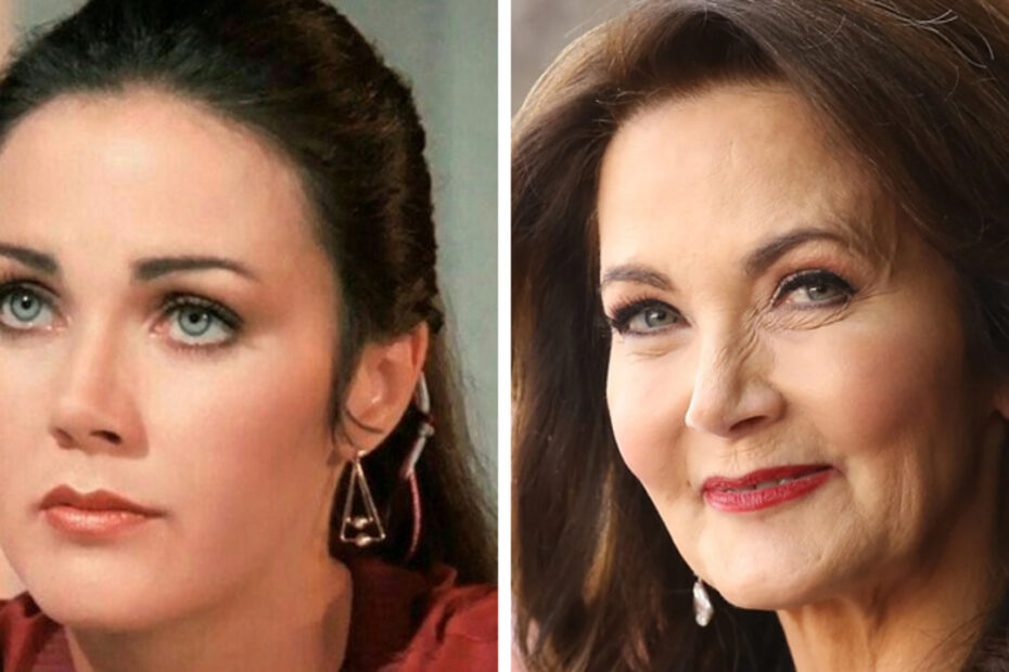 Lynda Carter's plastic surgery is making rounds on the internet.