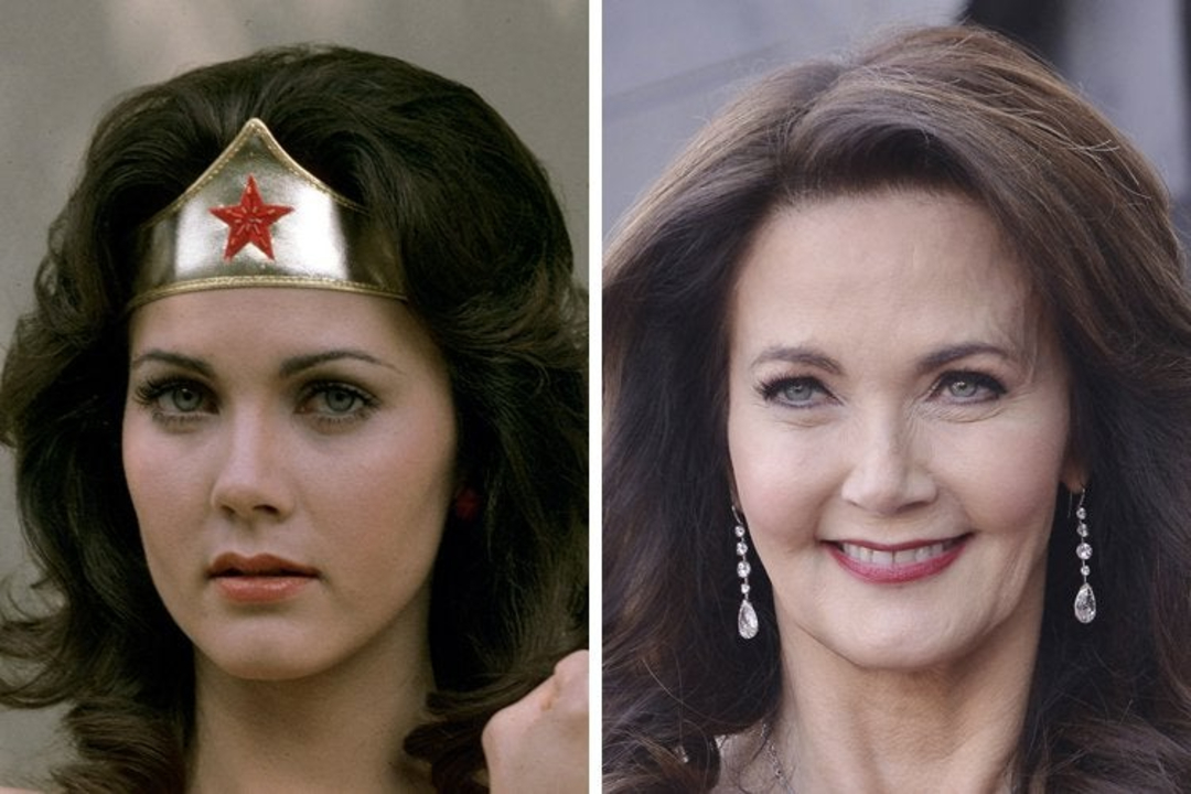 Lynda Carter before and after plastic surgery, notably Botox and facelift.