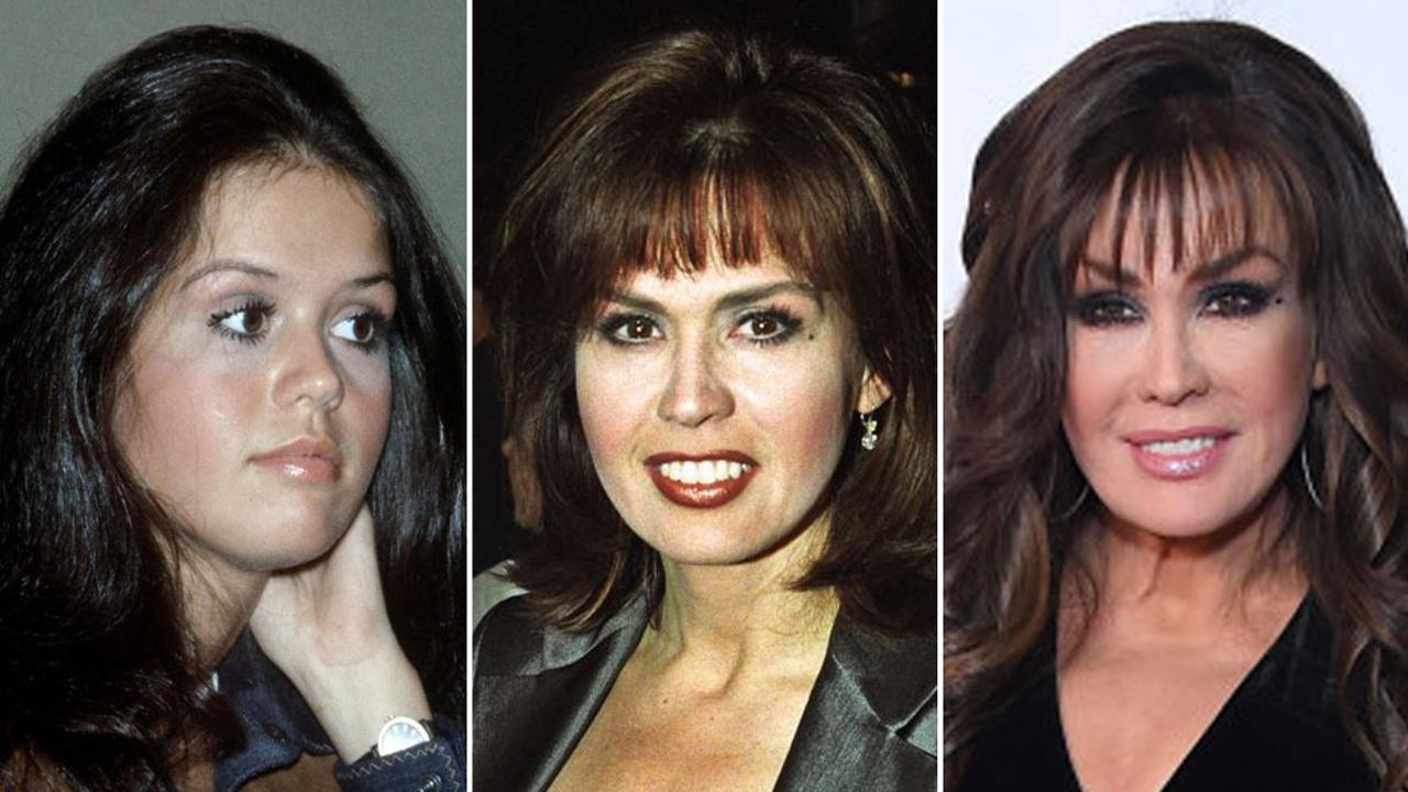 marie-osmond-plastic-surgery-2021