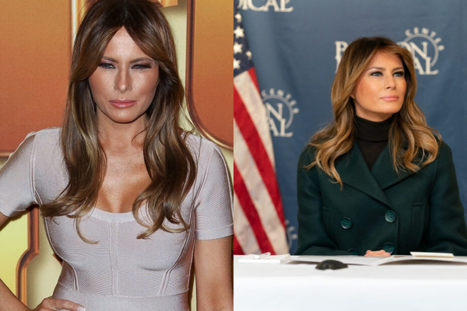 Melania Trump before and after weight loss.