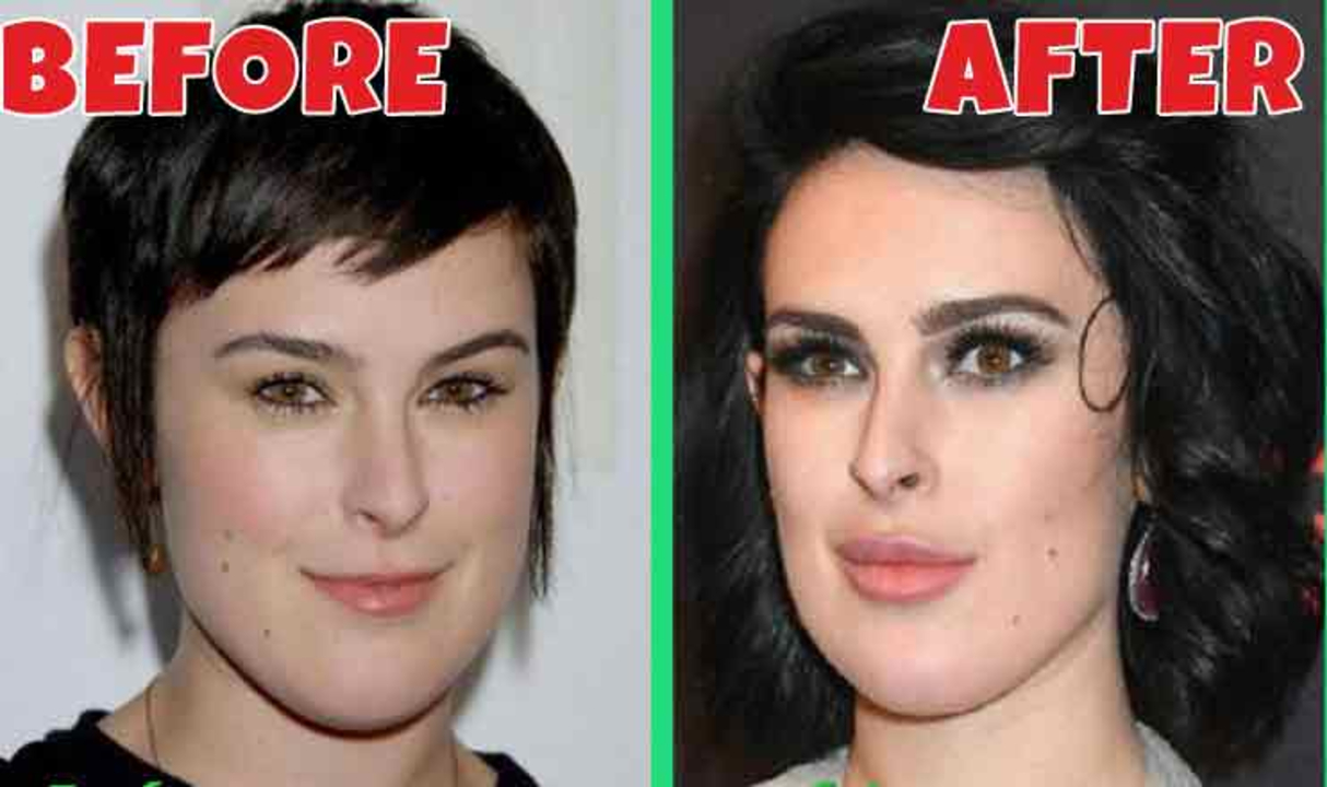 Rumer Willis before and after plastic surgery.