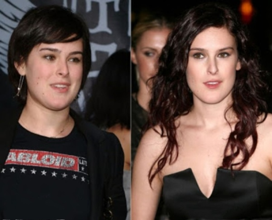Rumer Willis before and after breast implants plastic surgery.