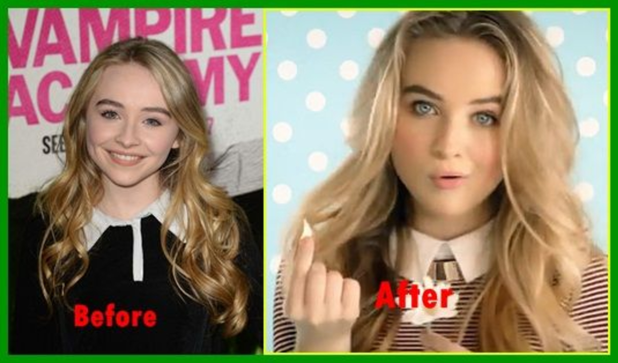 Sabrina Carpenter before and after nose job plastic surgery.