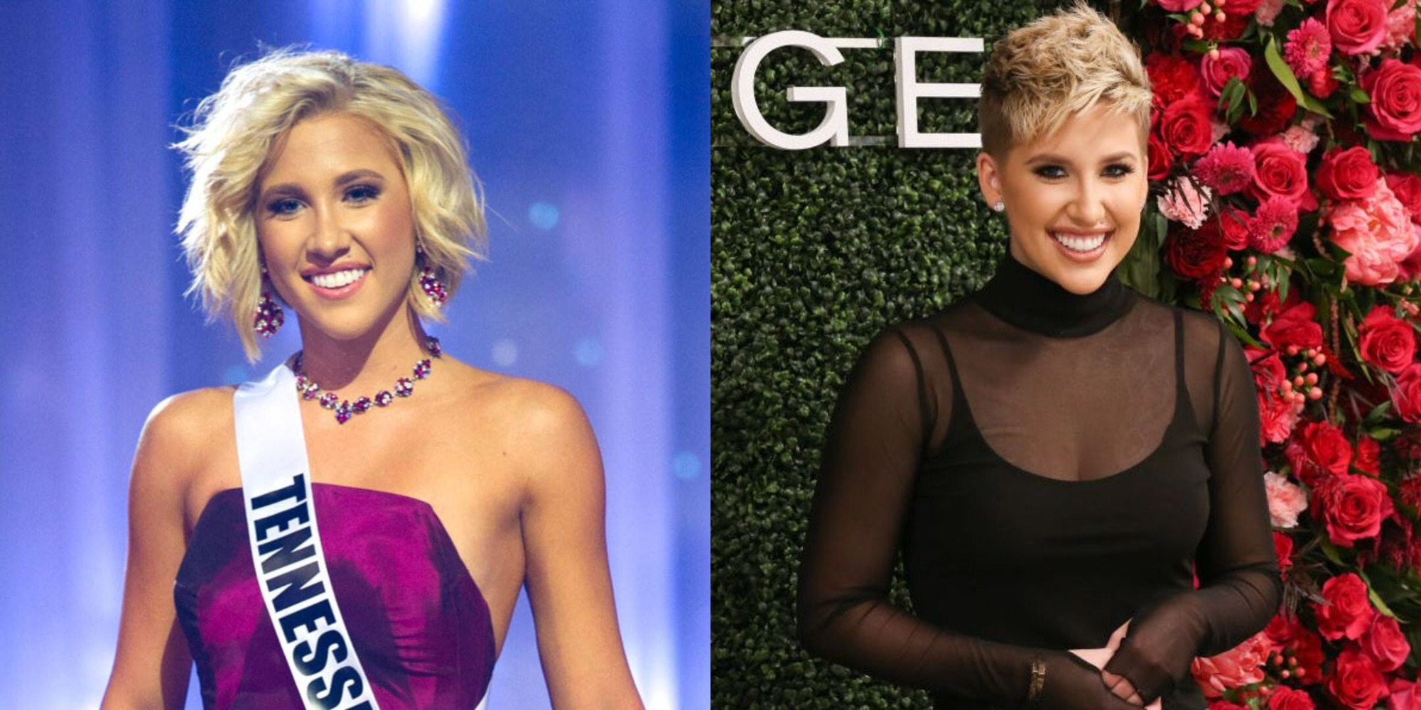 Savannah Chrisley before and after plastic surgery, notably nose job and breast implants.