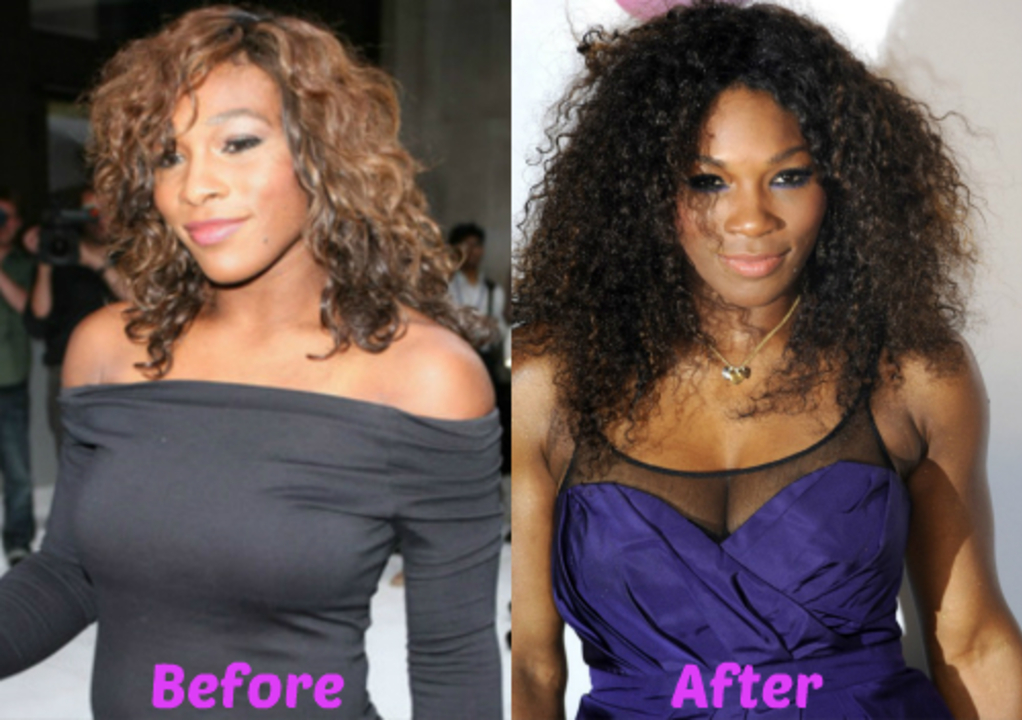 Serena Williams before and after alleged plastic surgery.