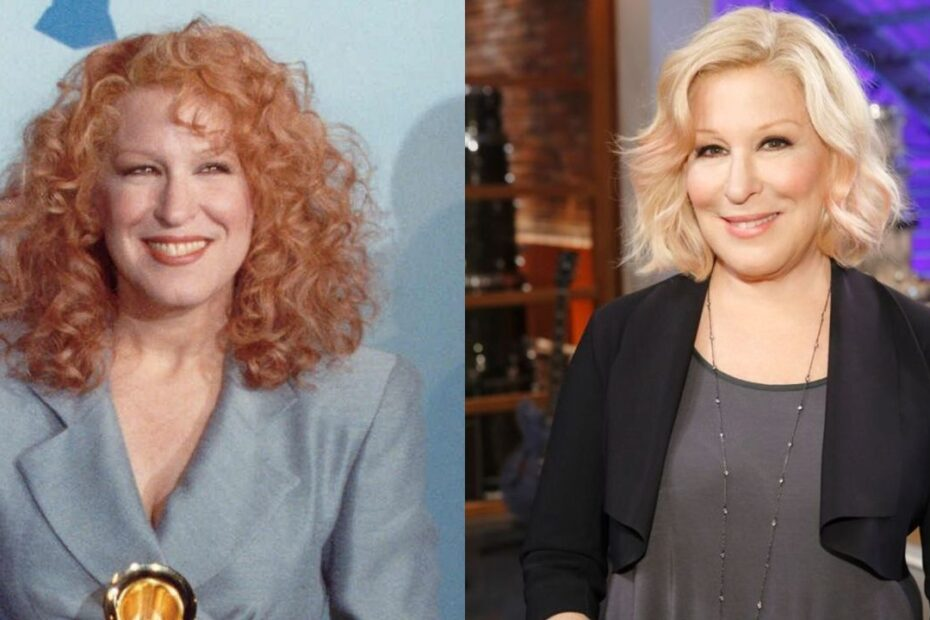 Bette Midler's plastic surgery includes a facelift, Botox injections & facial fillers.