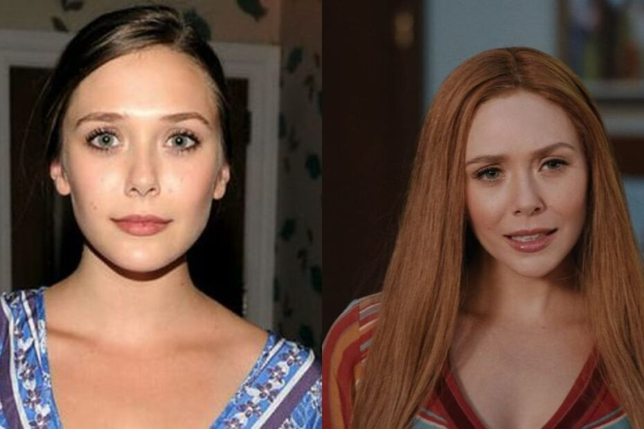 Elizabeth Olsen before and after plastic surgery, notably nose job aka rhinoplasty.