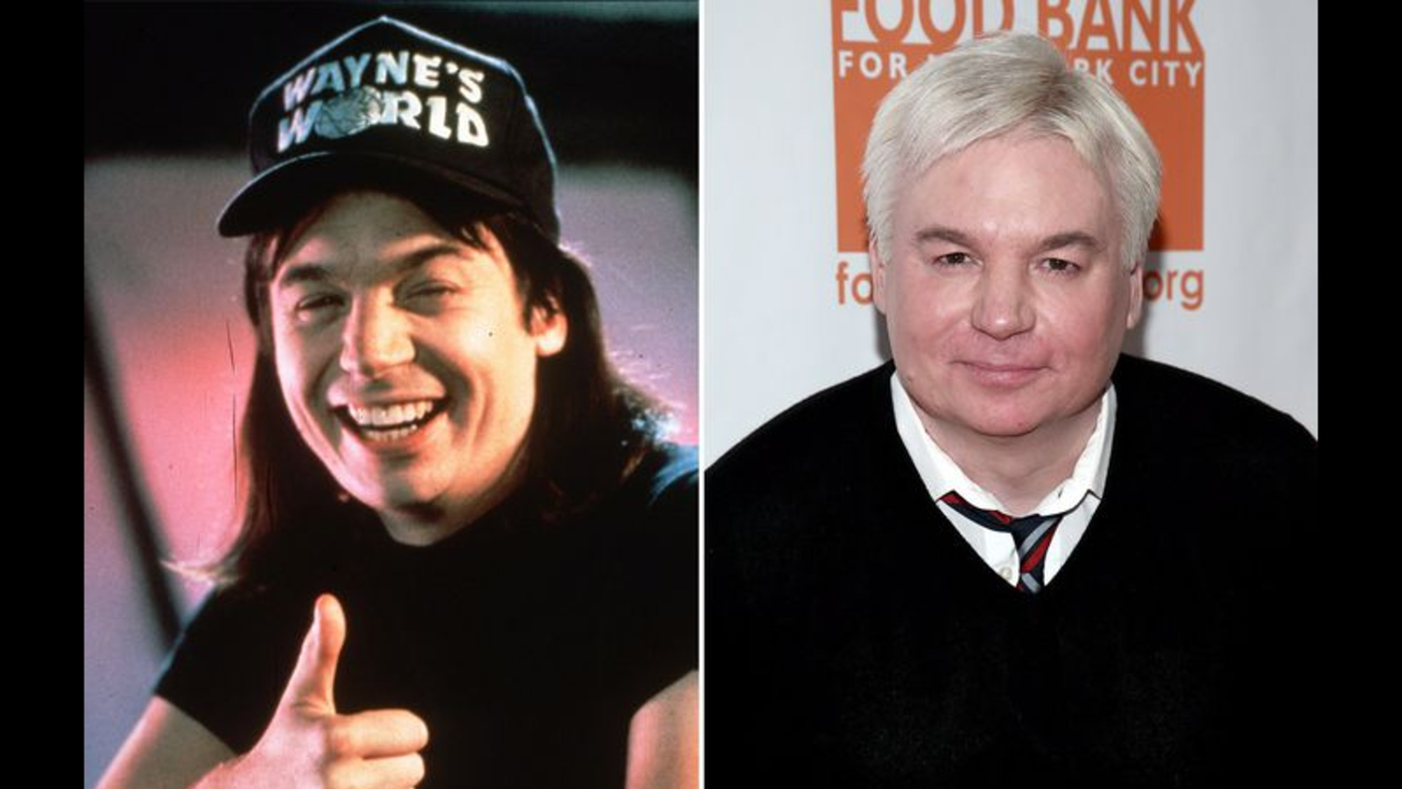 Mike Myers before and after plastic surgery.
