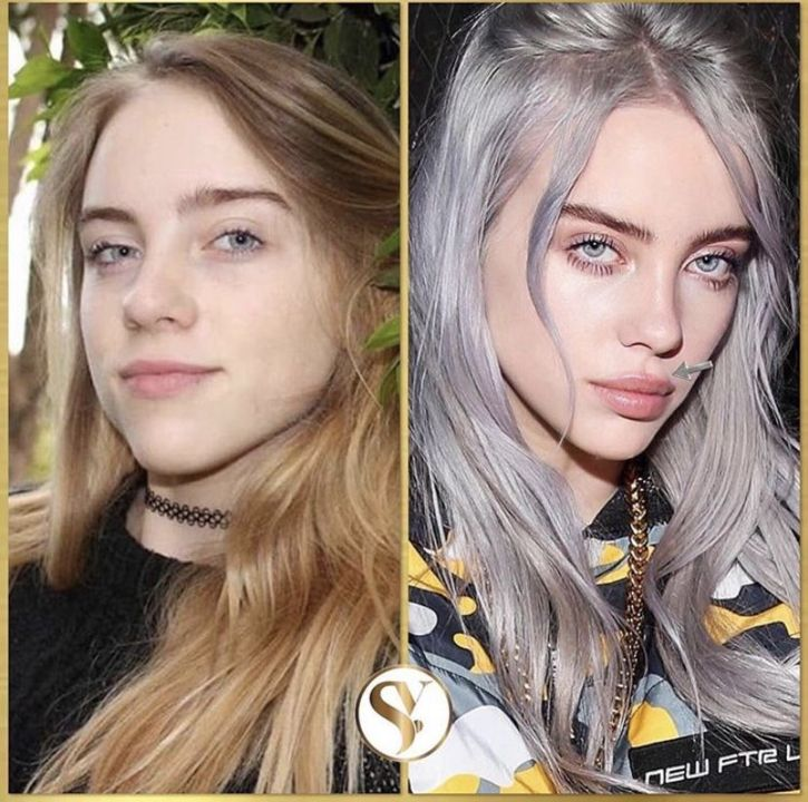 Billie Eilish before and after plastic surgery.