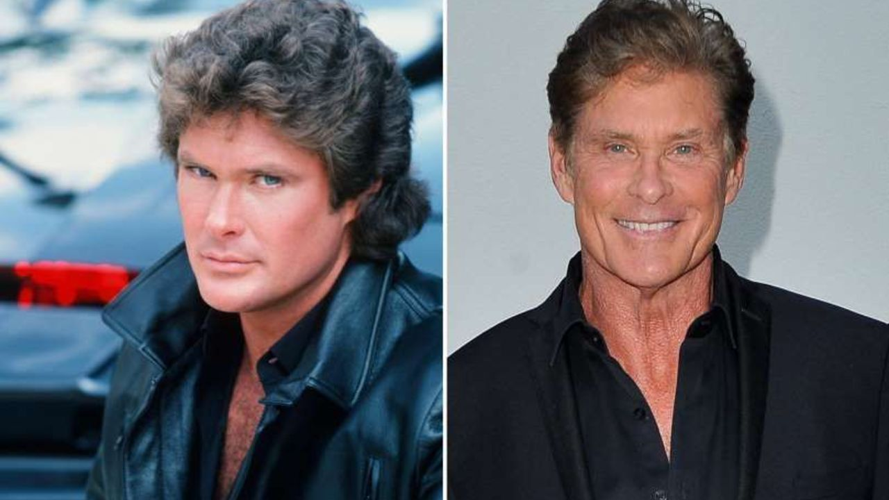 David Hasselhoff before and after alleged plastic surgery.