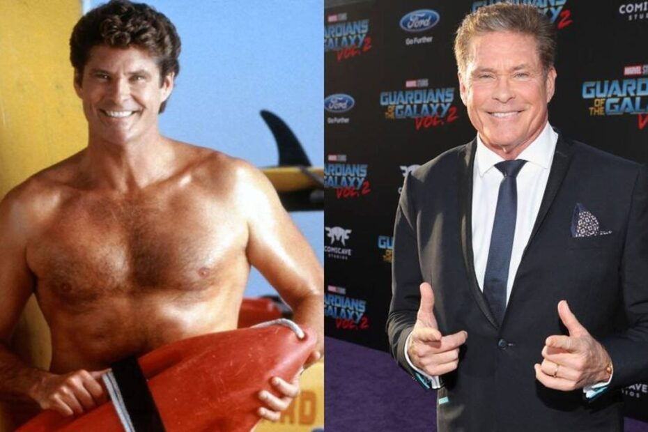 David Hasselhoff's Plastic Surgery is Making Rounds on the Internet