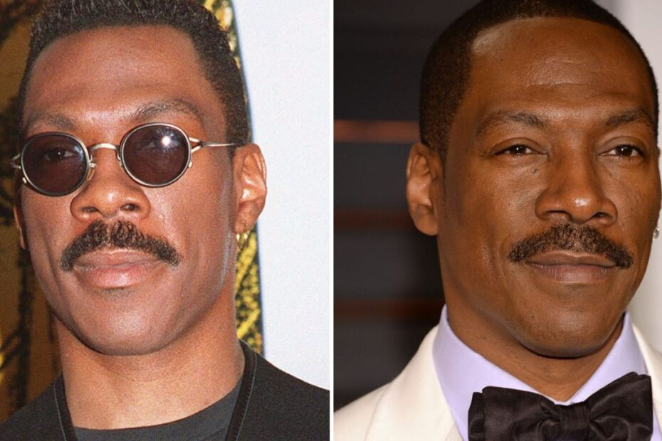 'Coming 2 America' Star Eddie Murphy's Plastic Surgery on His Face