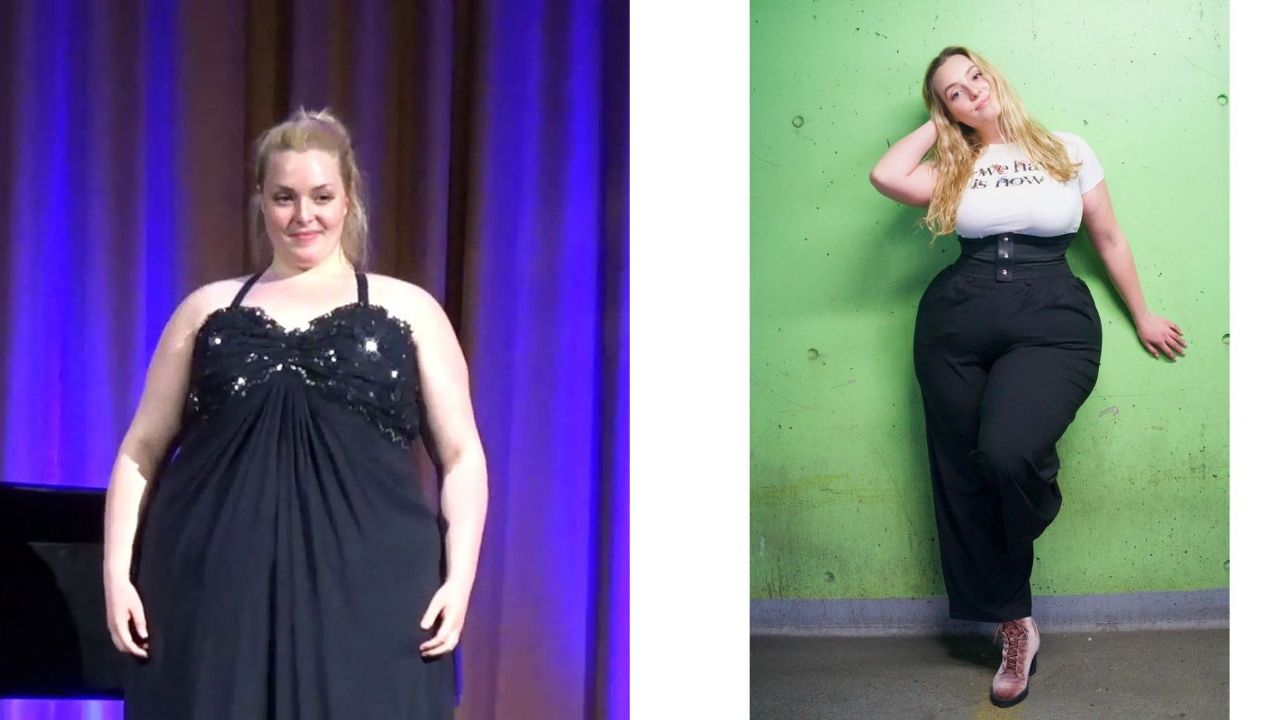 Grace Kinstler before and after weight loss surgery, making her hips stand out.