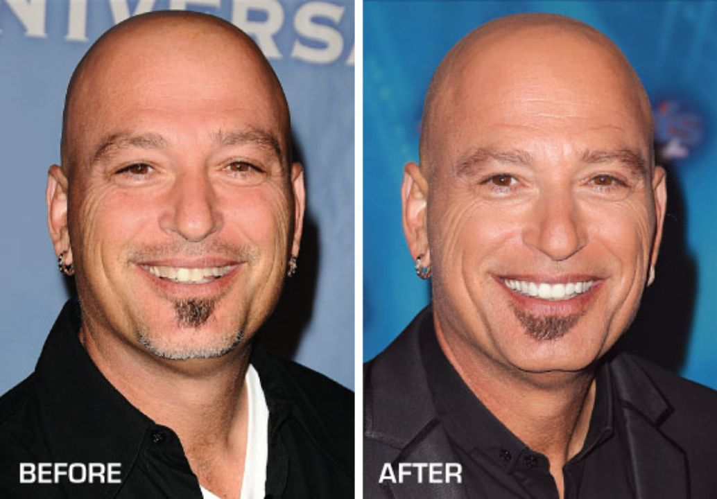 Howie Mandel before and after dental veneers plastic surgery.
