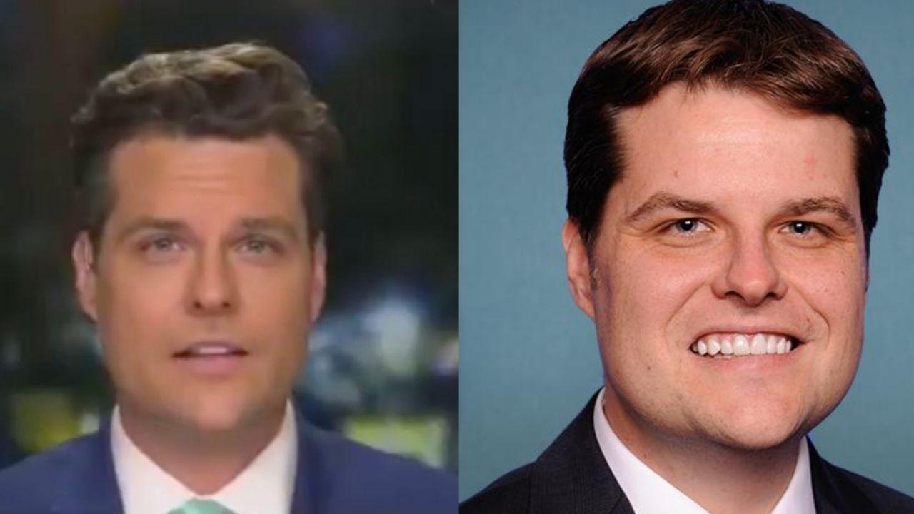 Matt Gaetz before and after plastic surgery.