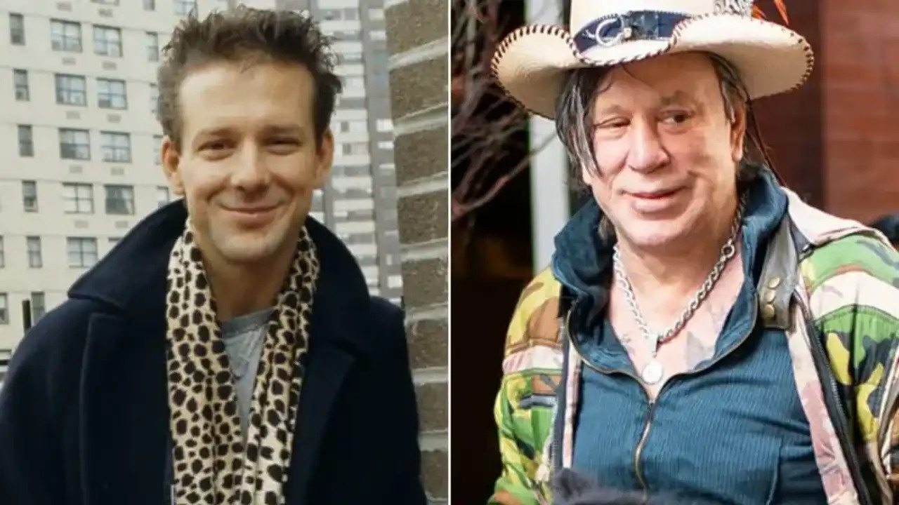 Mickey Rourke before and after botched plastic surgery on his face.