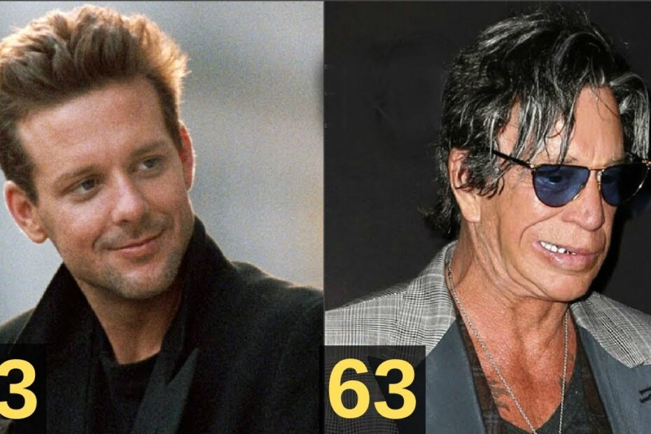 Mickey Rourke's Plastic Surgery - The Complete Breakdown!