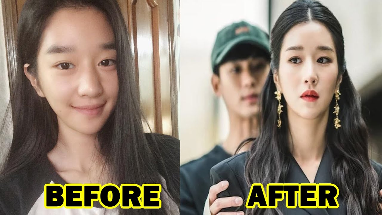 Seo Ye Ji before and after alleged plastic surgery.