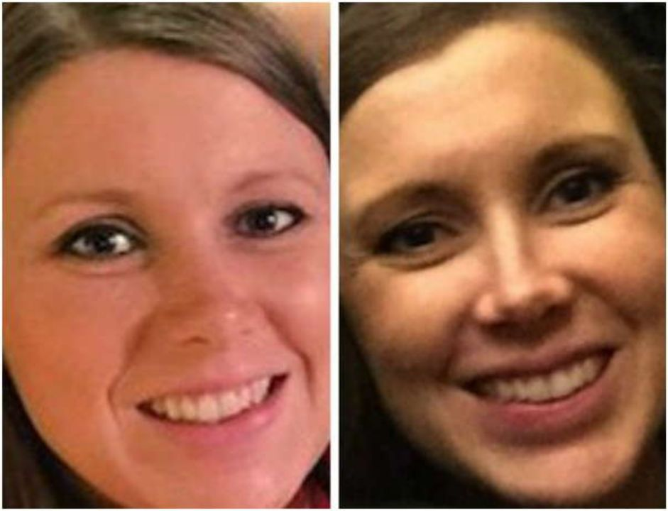 Anna Duggar before and after nose job plastic surgery.
