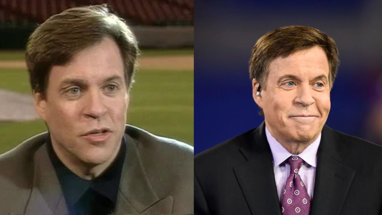 Bob Costas before and after plastic surgery.