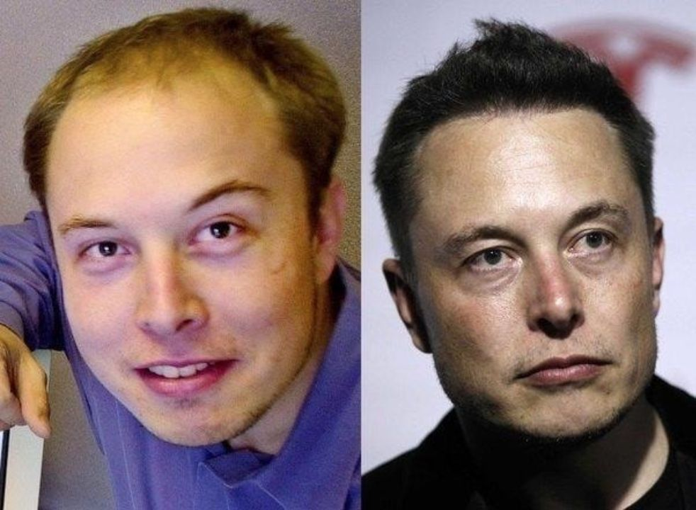 Elon Musk before and after hair transplant plastic surgery.