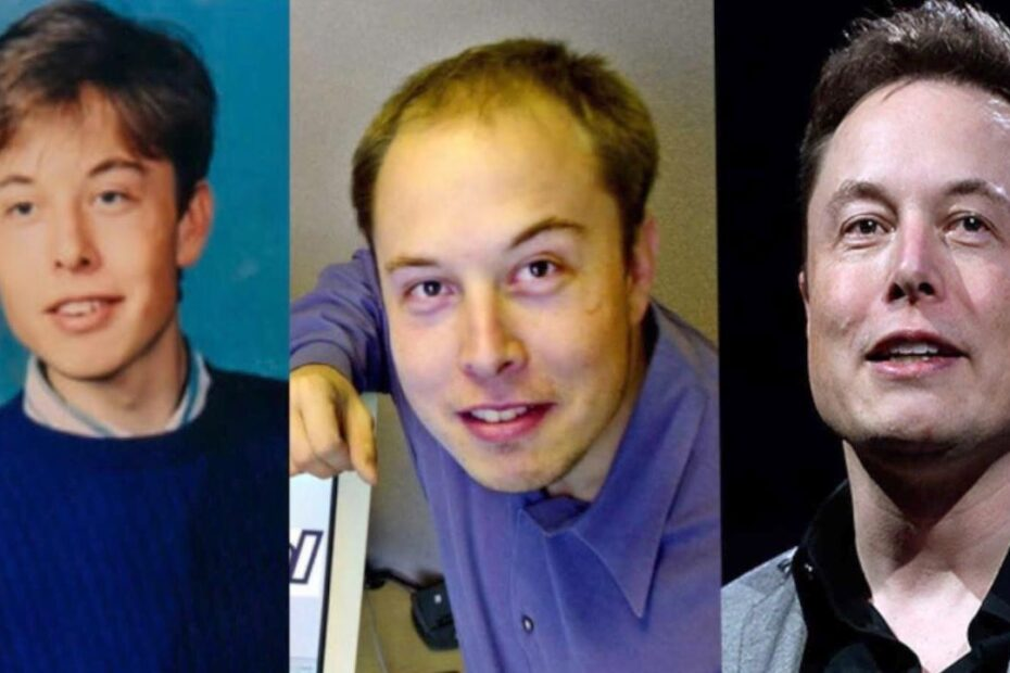 Real Truth About Elon Musk's Plastic Surgery - Facelift & Hair Transplant?