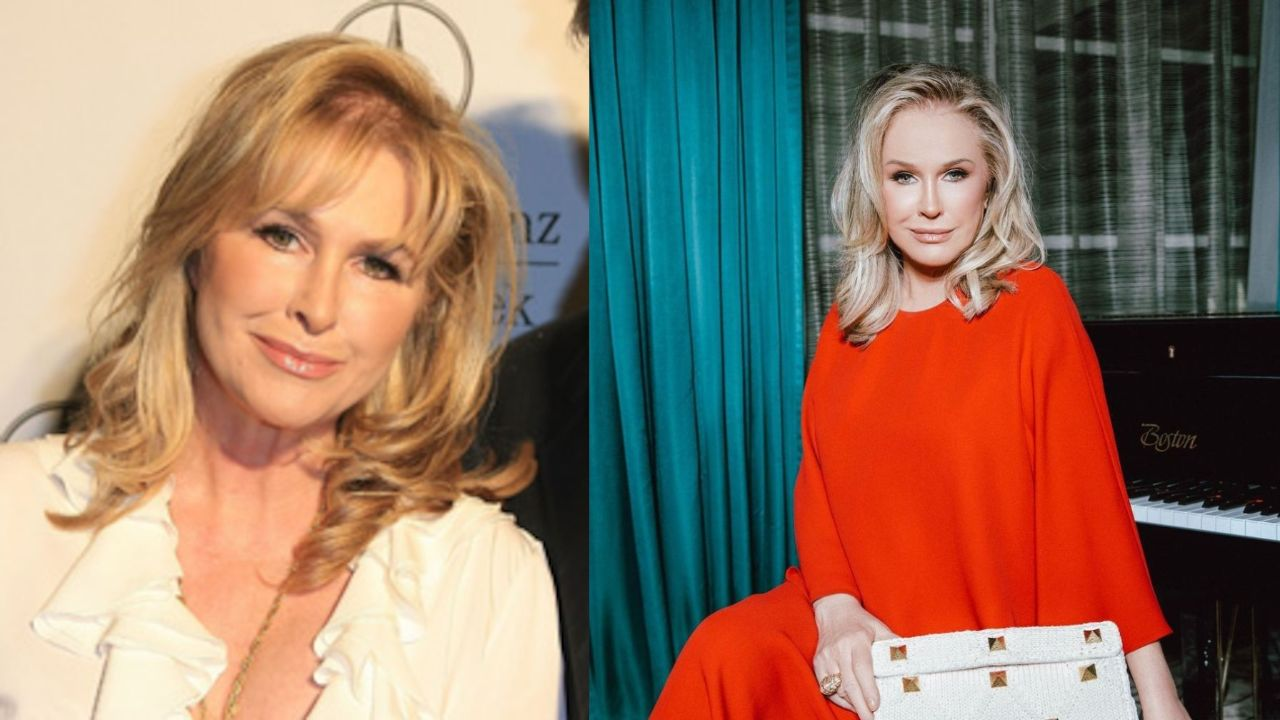 Kathy Hilton before and after alleged plastic surgery.