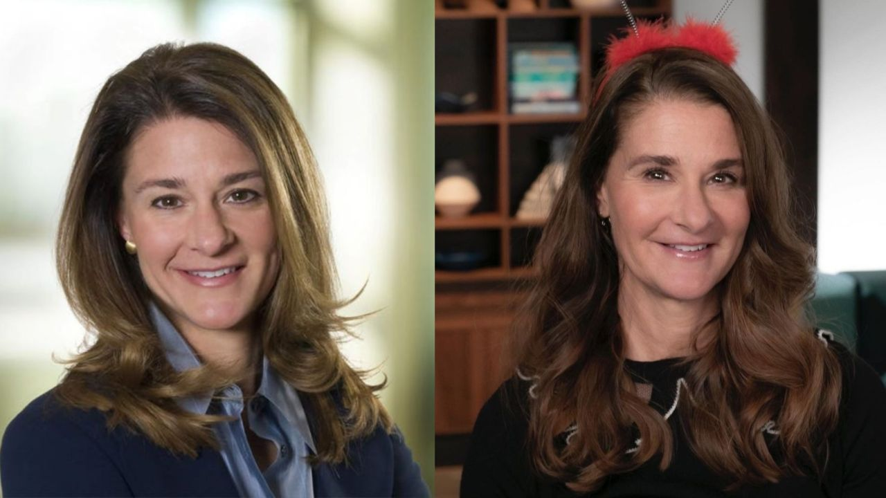 Melinda Gates before and after plastic surgery.