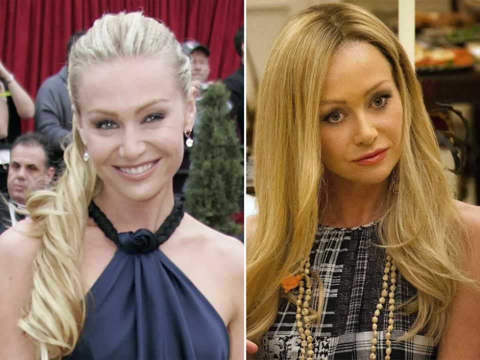 Portia De Rossi before and after plastic surgery.