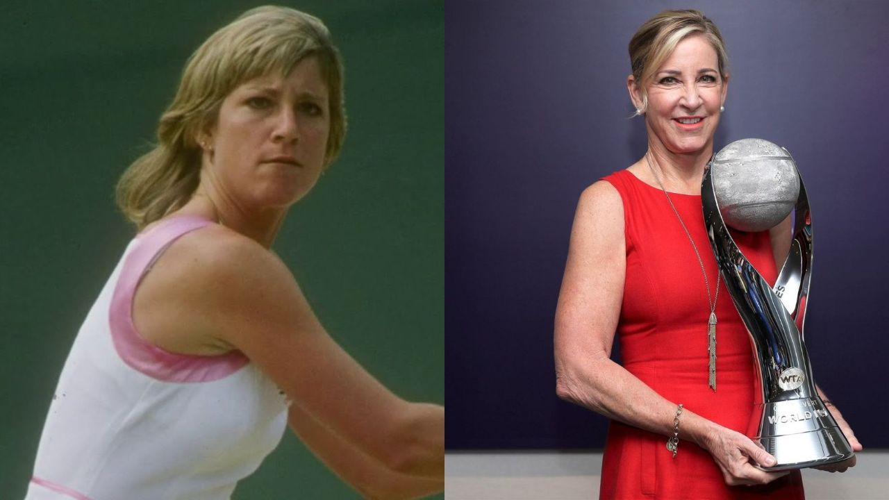 Chris Evert before and after plastic surgery.