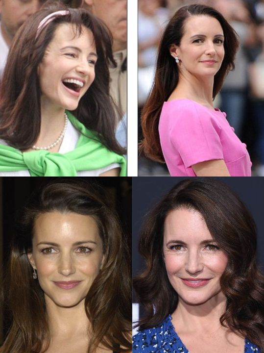 Kristin Davis before and after plastic surgery (Botox injections).