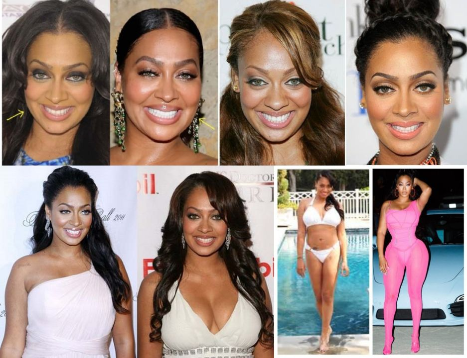 LaLa Anthony before and after plastic surgery, notably nose job, Botox, boob job, and butt lift.