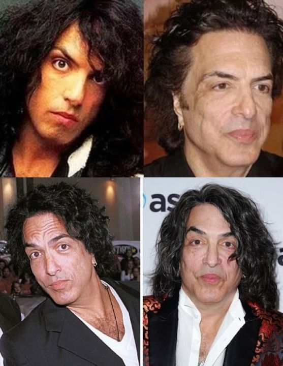 Paul Stanley before and after plastic surgery.