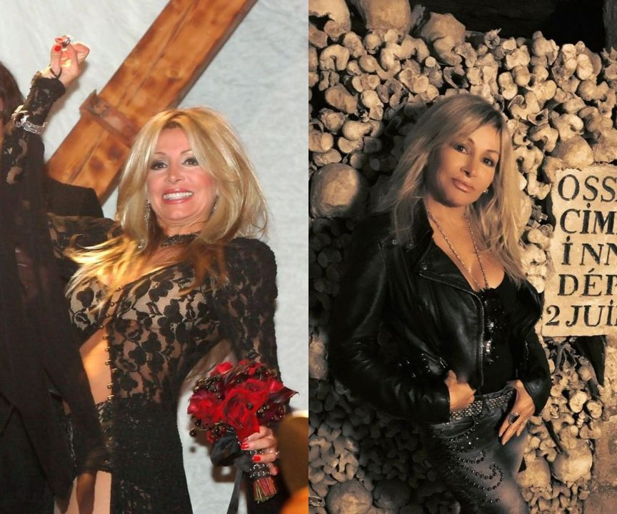 Suzette Snider before and after plastic surgery.