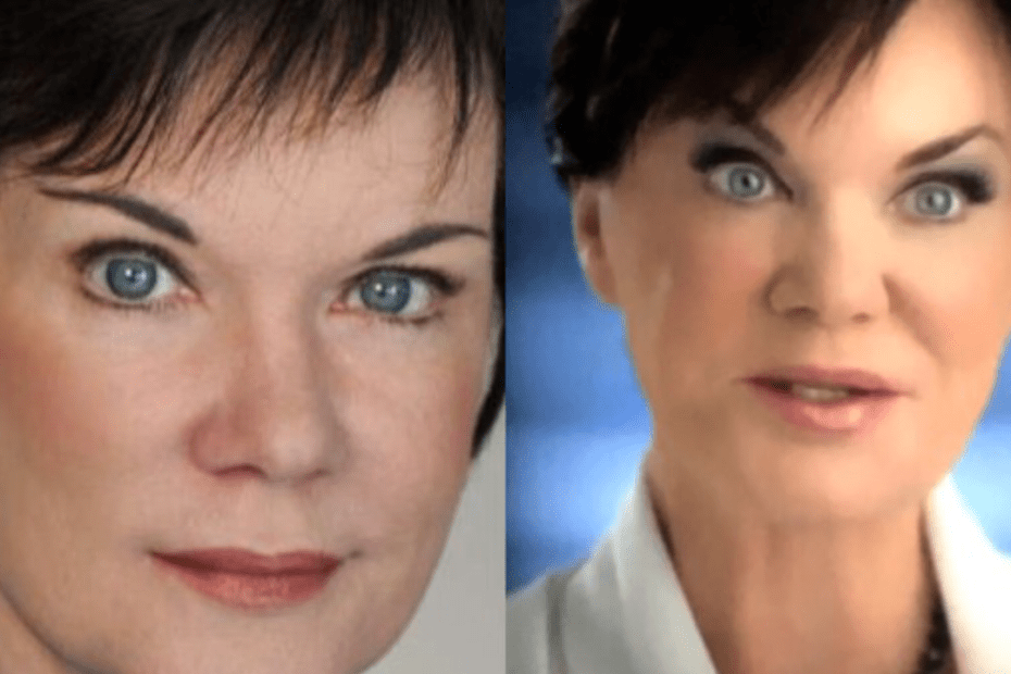 Real Truth About Candice DeLong's Plastic Surgery Procedures - Botox & Facelift?