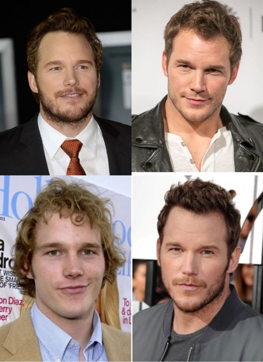 Chris Pratt before and after plastic surgery, allegedly Rhinoplasty aka nose job.